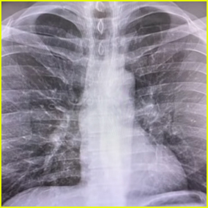 This Celebrity with Coronavirus Showed His Lung X-Ray